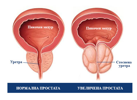 увеличена простата и сексуални проблеми