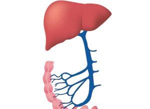 мезентериална венозна тромбоза