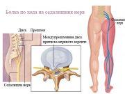 болка по хода на седалищния нерв