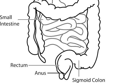 заболявания на ануса