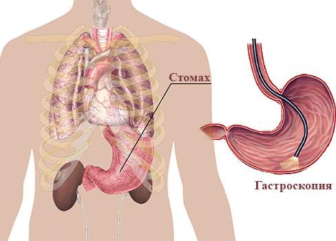 как се диагностицира язвената болест