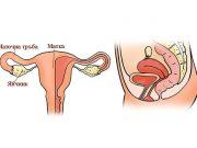 заболявания на матката