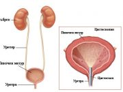 диагностицират туморите на пикочния мехур