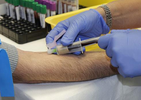 гликиран хемоглобин (HbA1с)