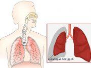 ателектаза – колапс на белия дроб