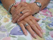 причини за състаряване на кожата на ръцете