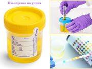 левкоцити в урината – левкоцитурия