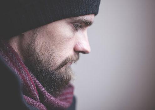алопеция в областта на брадата
