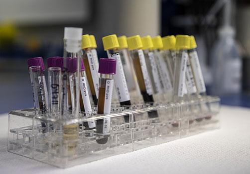 простатен специфичен антиген (ПСА/ PSA)