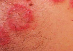 псориазис на гениталиите