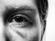 воднисто око, воднисти очи