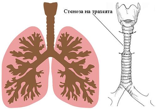 стеноза на трахеята