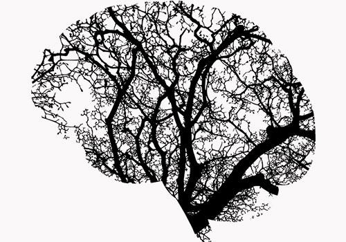причини за кръвоизлив в мозъка