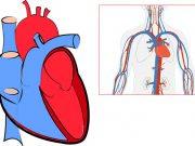 кардиогенен шок