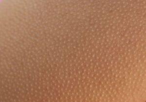 кератозис пиларис – гъша кожа