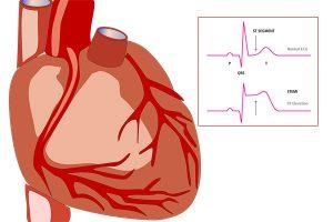 видове инфаркт на миокарда