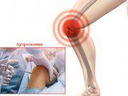 септичен артрит (инфекциозен артрит)