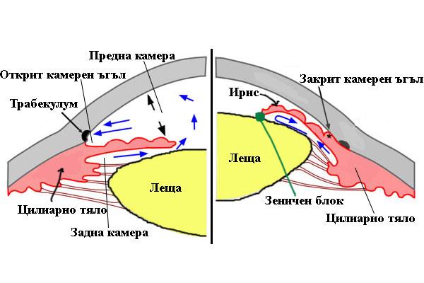 глаукомен пристъп