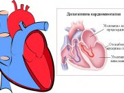 дилатативна кардиомиопатия