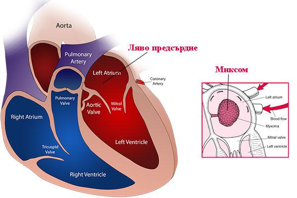 миксом на сърцето