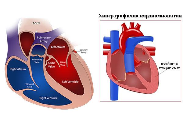 хипертрофична кардиомиопатия