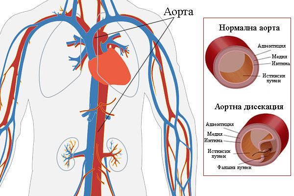 аортна дисекация