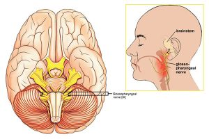 глософарингеална невралгия