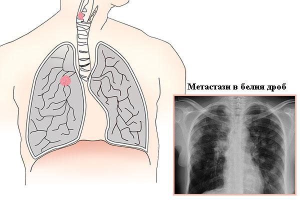 метастази в белия дроб
