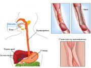 Стриктура на хранопровода (езофагеална стриктура)