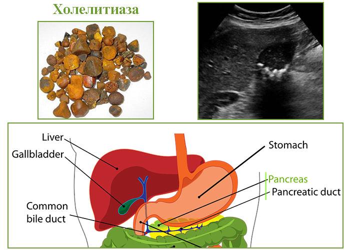 как се диагностицира жлъчно-каменна болест