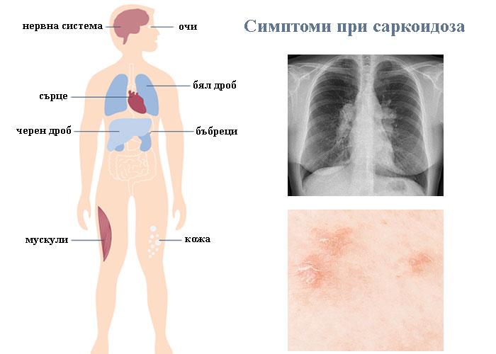 симптоми при саркоидоза