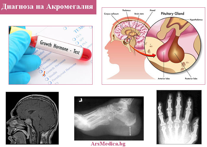 Как се диагностицира акромегалия?