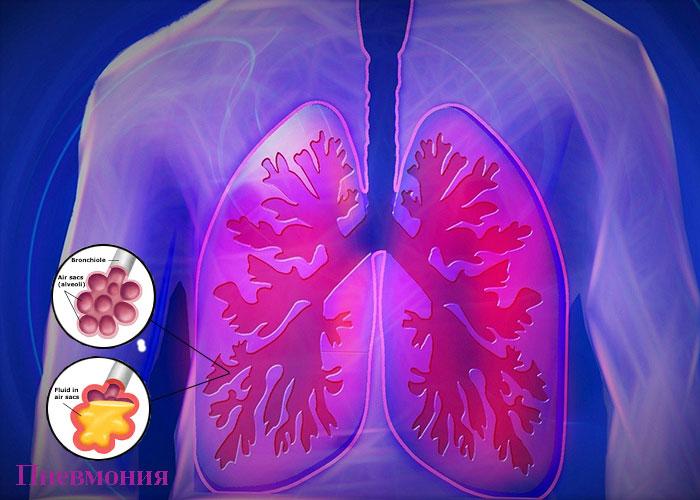 симптоми при пневмония