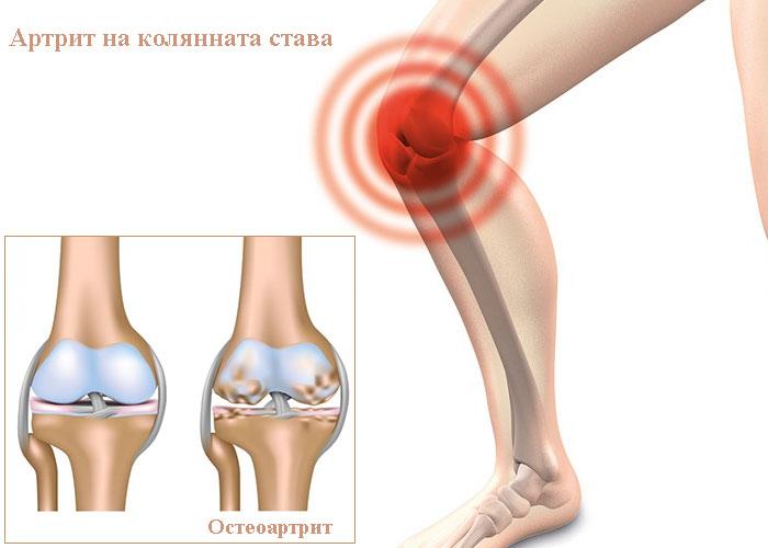 артрит на колянната става