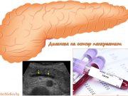 диагноза на остър панкреатит