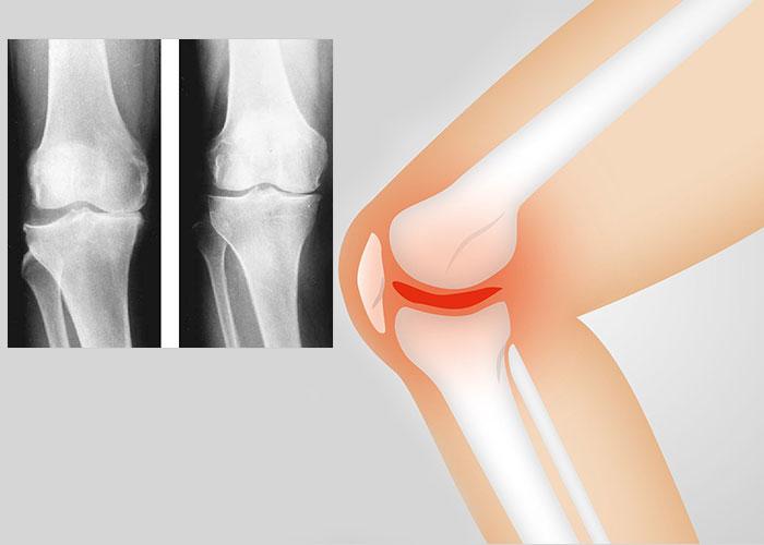 артроза на колянната става