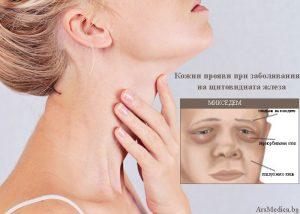 Кожни прояви при заболявания на щитовидната жлеза