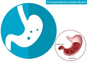 усложнения на язвена болест