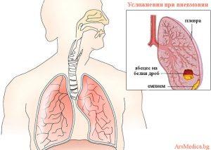 усложнения при пневмония