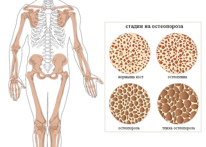 как се диагностицира остеопороза