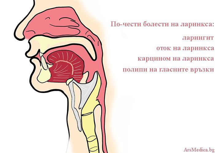 болести на ларинкса