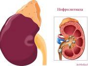 диагностициране на нефролитиазата