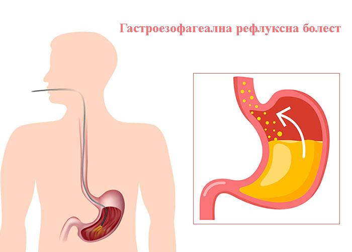 диагнозата гастроезофагеална рефлуксна болест