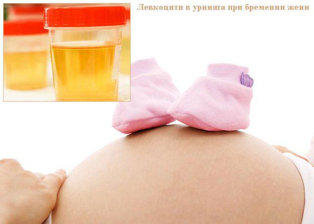 левкоцити в урината при бременни