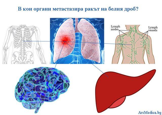 метастазира ракът на белия дроб