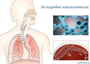 белодробна кандидомикоза