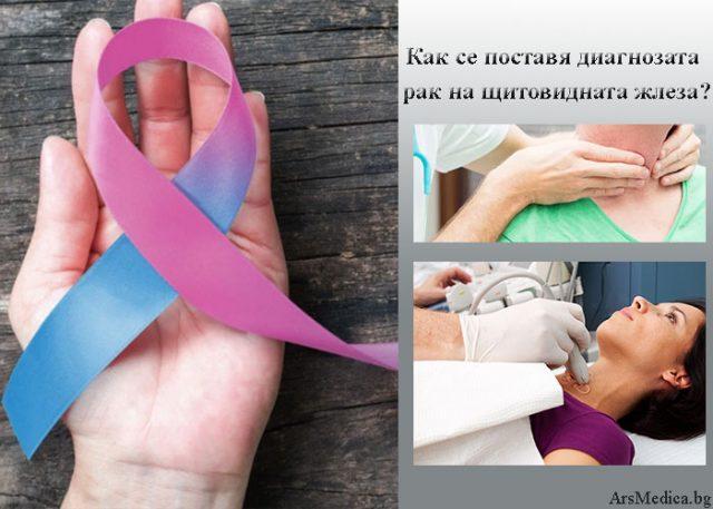диагнозата рак на щитовидната жлеза