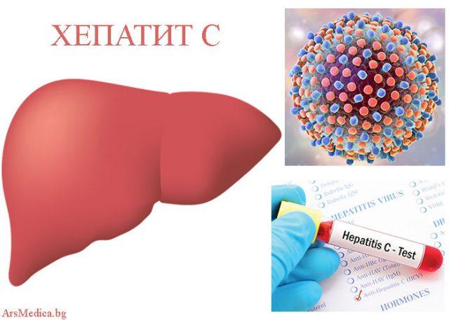 хепатит С
