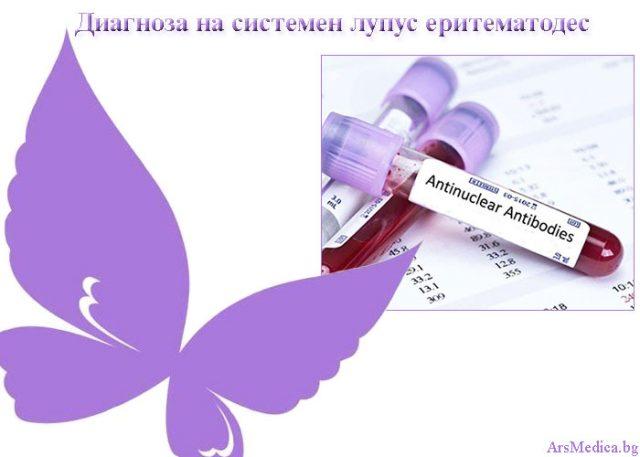 диагноза на лупус еритематодес