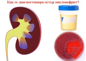 диагностицира остър пиелонефрит